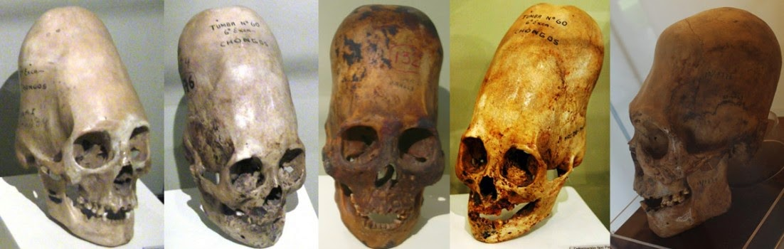 Paracas Elongated Skull's DNA Results Are In—LA Marzulli Drops a Shocking Report…